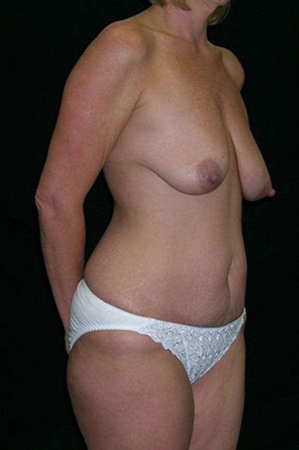 Mommy Makeover Gallery - Patient 23533962 - Image 3
