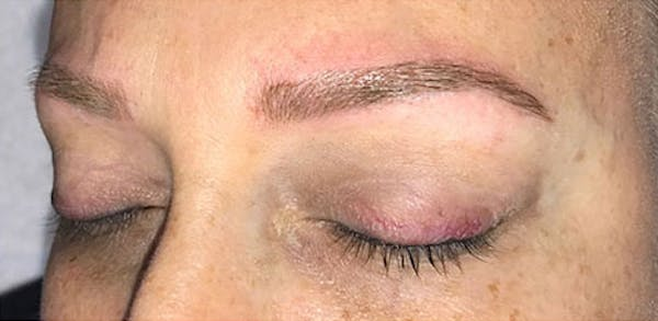 Microblading Gallery - Patient 23533957 - Image 4