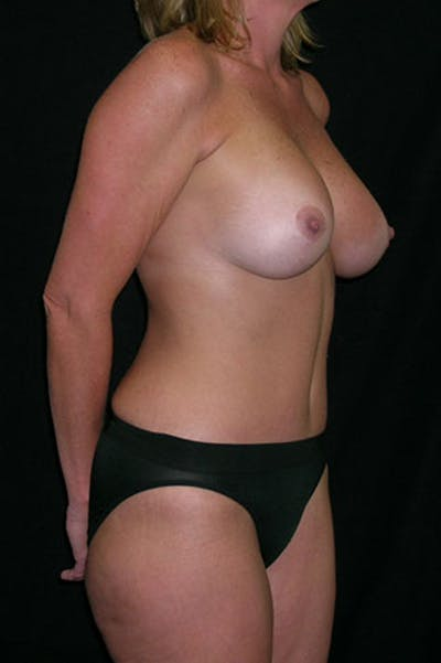 Mommy Makeover Gallery - Patient 23533962 - Image 4