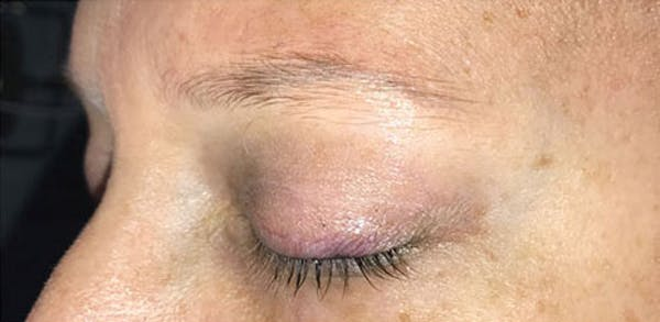 Microblading Gallery - Patient 23533957 - Image 5