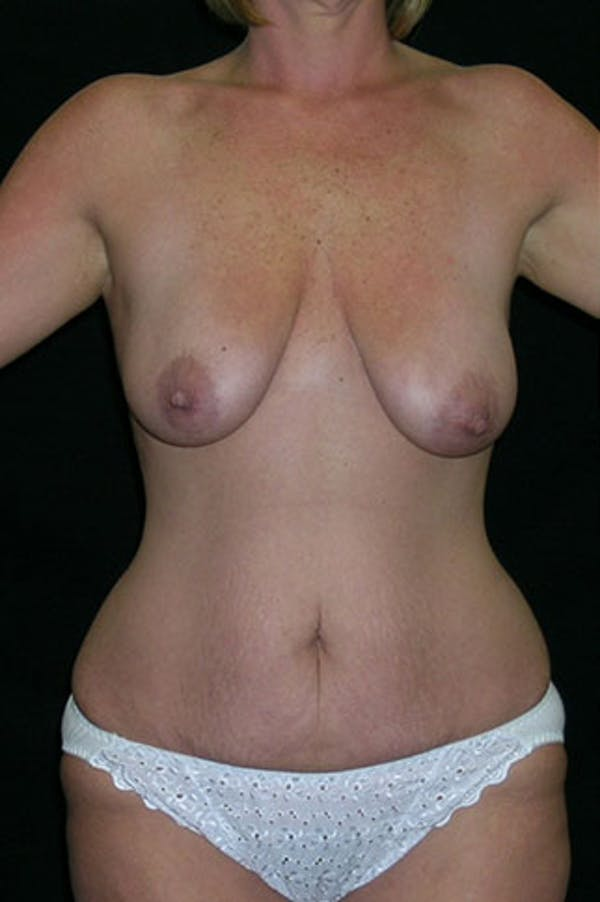 Mommy Makeover Gallery - Patient 23533962 - Image 5