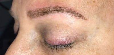 Microblading Gallery - Patient 23533957 - Image 6