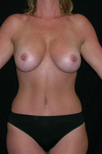 Mommy Makeover Gallery - Patient 23533962 - Image 6