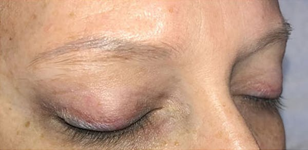 Microblading Gallery - Patient 23533957 - Image 7