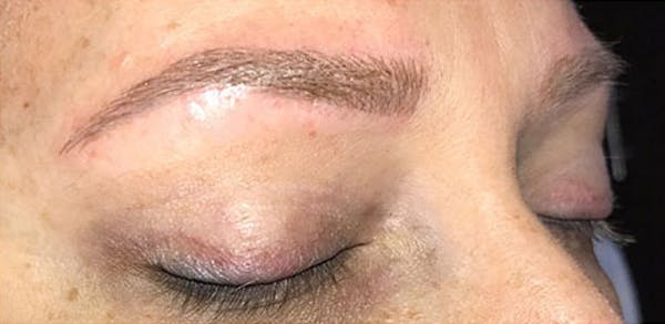 Microblading Gallery - Patient 23533957 - Image 8