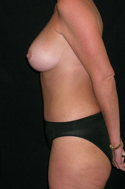Mommy Makeover Gallery - Patient 23533962 - Image 8