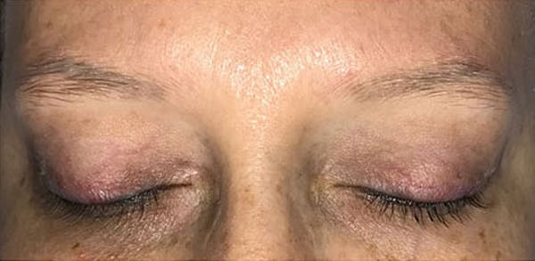 Microblading Gallery - Patient 23533957 - Image 9