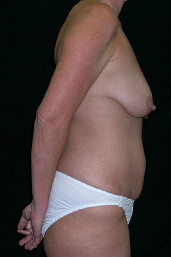 Mommy Makeover Gallery - Patient 23533962 - Image 9