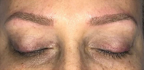 Microblading Gallery - Patient 23533957 - Image 10