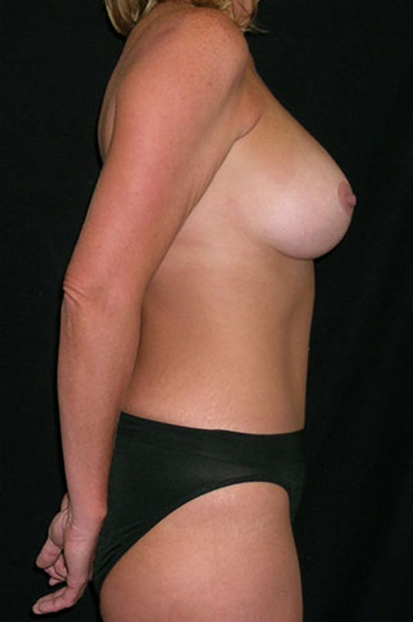 Mommy Makeover Gallery - Patient 23533962 - Image 10