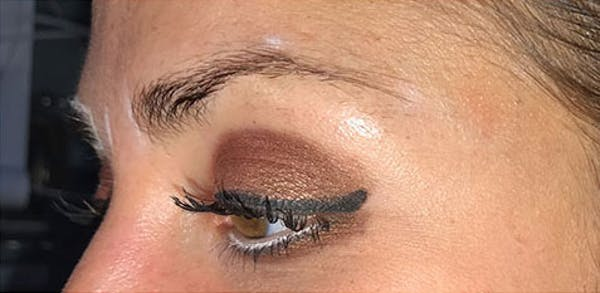 Microblading Gallery - Patient 23533964 - Image 1