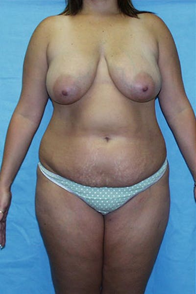 Mommy Makeover Gallery - Patient 23533965 - Image 1
