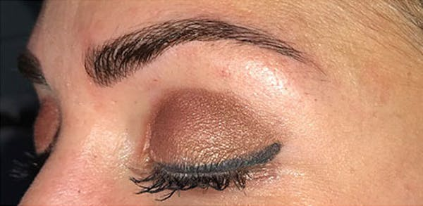 Microblading Gallery - Patient 23533964 - Image 2