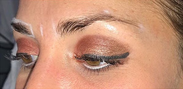 Microblading Gallery - Patient 23533964 - Image 3