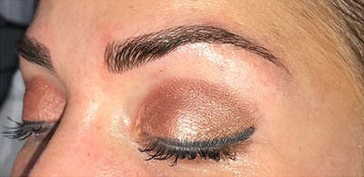 Microblading Gallery - Patient 23533964 - Image 4