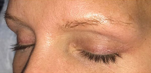Microblading Gallery - Patient 23533966 - Image 1