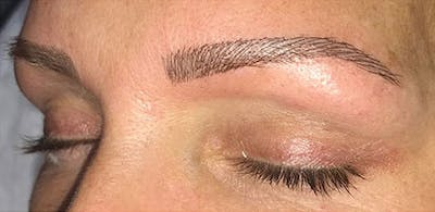 Microblading Gallery - Patient 23533966 - Image 2