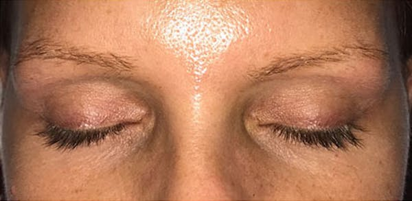 Microblading Gallery - Patient 23533966 - Image 3