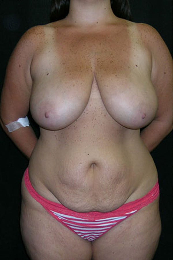 Mommy Makeover Gallery - Patient 23533969 - Image 1