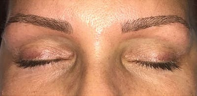 Microblading Gallery - Patient 23533966 - Image 4
