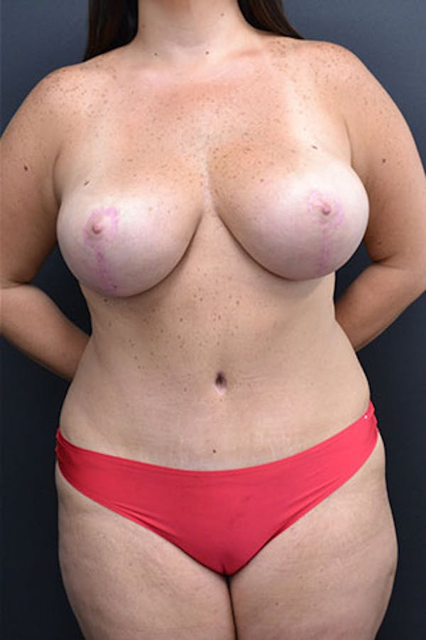 Mommy Makeover Gallery - Patient 23533969 - Image 2