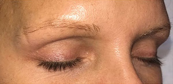 Microblading Gallery - Patient 23533966 - Image 5