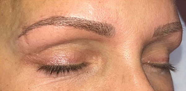 Microblading Gallery - Patient 23533966 - Image 6