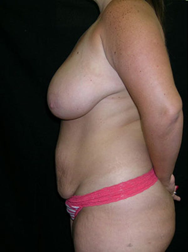 Mommy Makeover Gallery - Patient 23533969 - Image 3