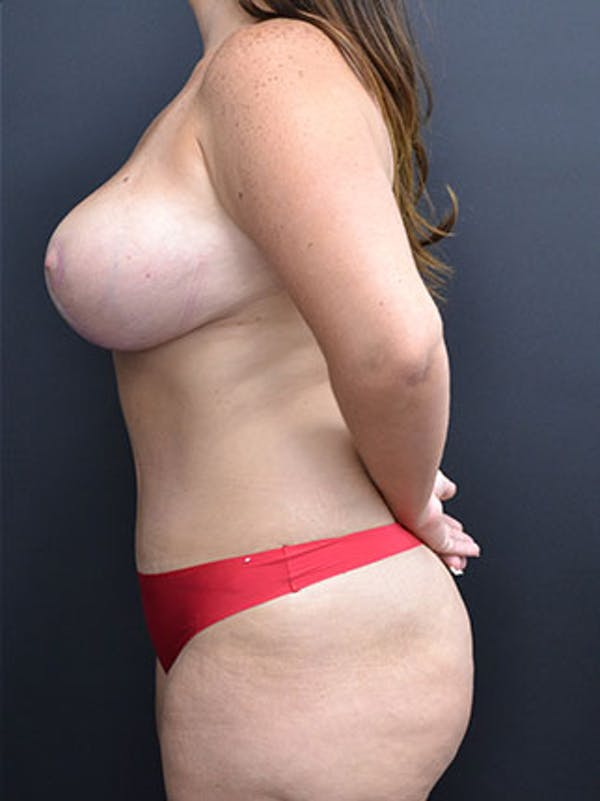 Mommy Makeover Gallery - Patient 23533969 - Image 4