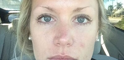 Microblading Gallery - Patient 23533967 - Image 1