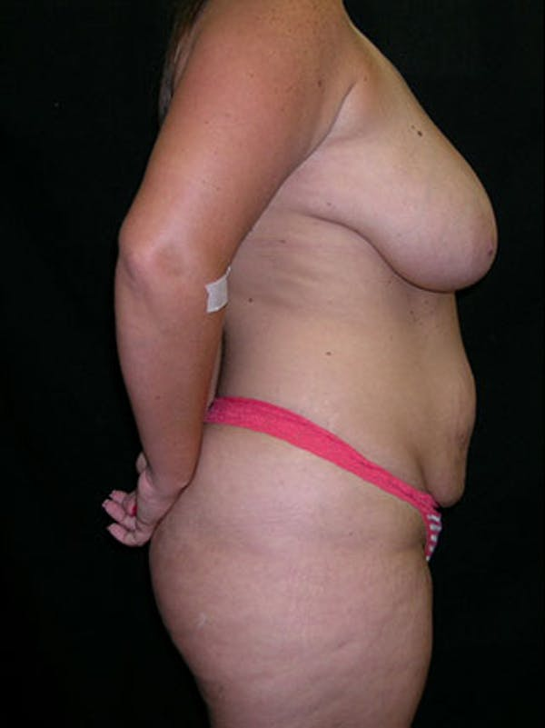 Mommy Makeover Gallery - Patient 23533969 - Image 5