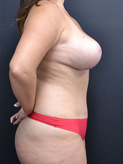 Mommy Makeover Gallery - Patient 23533969 - Image 6
