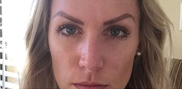 Microblading Gallery - Patient 23533967 - Image 2