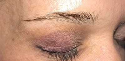 Microblading Gallery - Patient 23533968 - Image 1