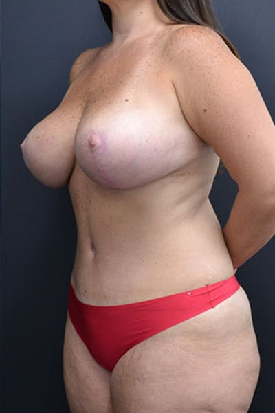 Mommy Makeover Gallery - Patient 23533969 - Image 8