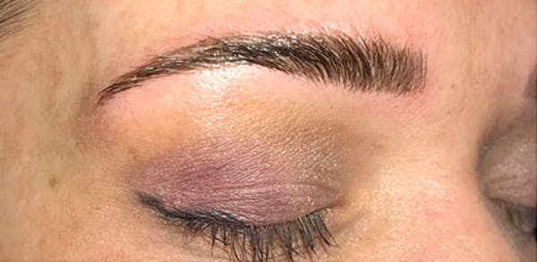 Microblading Gallery - Patient 23533968 - Image 2