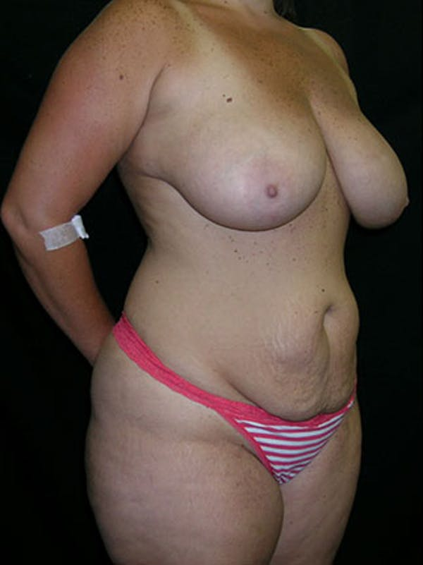 Mommy Makeover Gallery - Patient 23533969 - Image 9