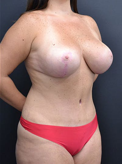 Mommy Makeover Gallery - Patient 23533969 - Image 10
