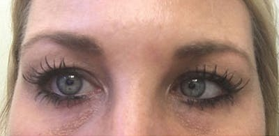 Microblading Gallery - Patient 23533970 - Image 1