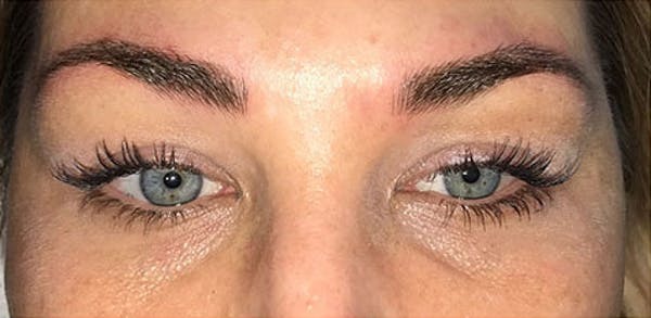 Microblading Gallery - Patient 23533970 - Image 2