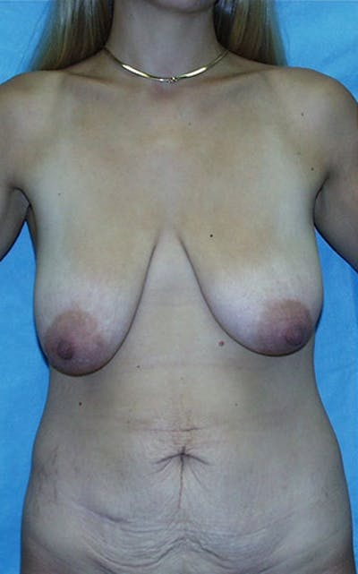 Mommy Makeover Gallery - Patient 23533972 - Image 1