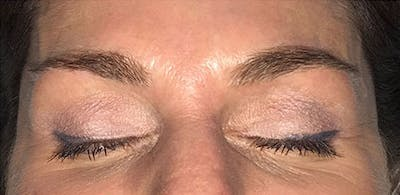 Microblading Gallery - Patient 23533971 - Image 1
