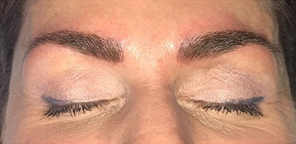 Microblading Gallery - Patient 23533971 - Image 2