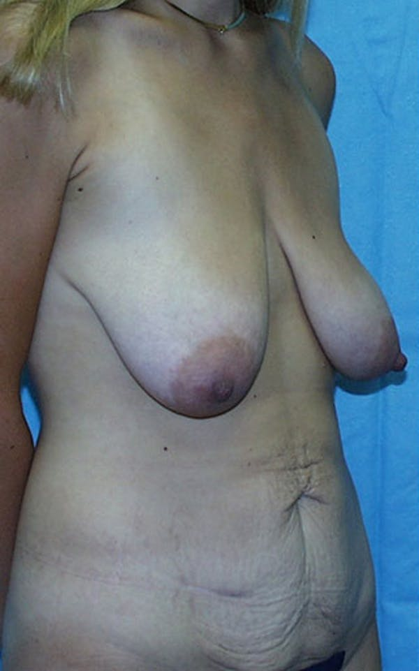 Mommy Makeover Gallery - Patient 23533972 - Image 5