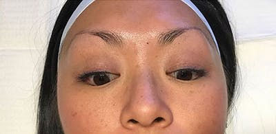 Microblading Gallery - Patient 23533973 - Image 1
