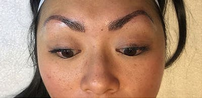 Microblading Gallery - Patient 23533973 - Image 2