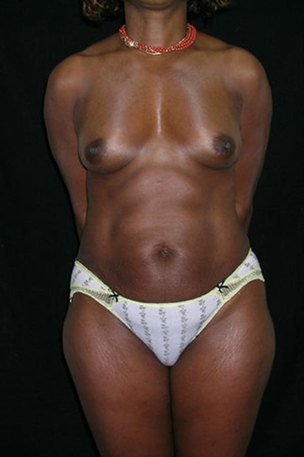 Mommy Makeover Gallery - Patient 23533980 - Image 1