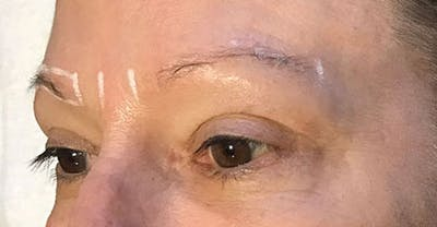 Microblading Gallery - Patient 23533974 - Image 1