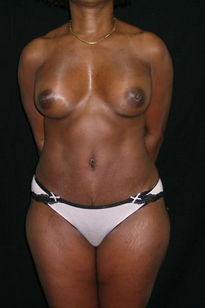 Mommy Makeover Gallery - Patient 23533980 - Image 2