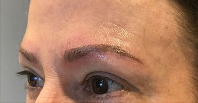 Microblading Gallery - Patient 23533974 - Image 2